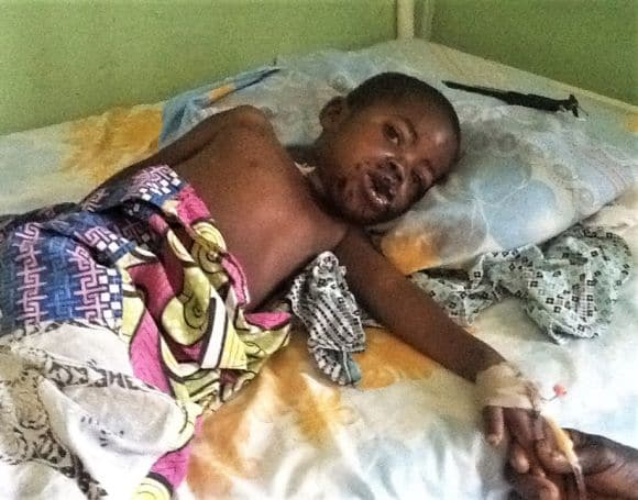 Chanka Amos 4 lata, ranny
